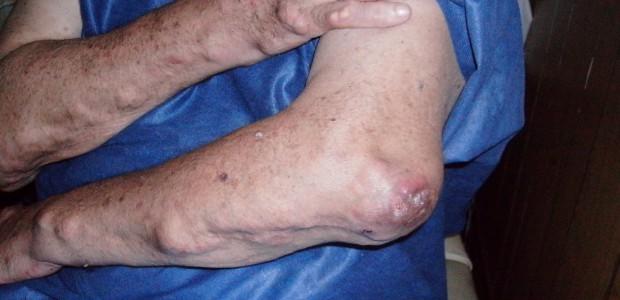 La artritis reumatoidea es una enfermedad crónica que causa inflamación de las articulaciones, tejidos circundantes y puede afectar otros órganos. Es más común en las manos pero en la práctica […]