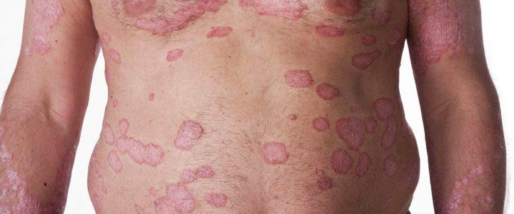 La psoriasis es una enfermedad de la piel causada por la acelerada renovación de las células, este proceso tarda normalmente un mes sin embargo en las personas que sufren este […]