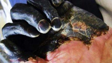 La peste bubónica rebotó en Mongolia, cobrando la vida de dos personas. Conoce cómo identificar los síntomas a tiempo y qué tratamientos existen en la actualidad.La peste, causada por bacterias […]